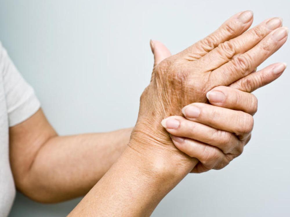 artritis reumatoide, te y artritis